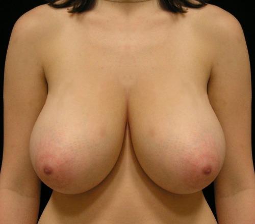 amatorskie zdjęcia erotyczne - 24313