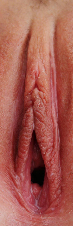 amatorskie zdjęcia erotyczne - 26175